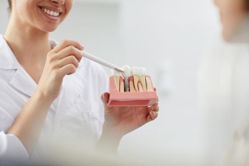 """<span style=""""font-weight: 400;"""">Os implantes dentários devolvem funções e a autoestima através do sorriso</span> &#8211; Foto: Divulgação"""